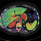 Spectral energy is redefining CT imaging