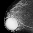 Mammography:  Benefit of Computer-Aided Detection