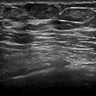 Primary mammary angiosarcoma in a male
