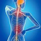 Spinal Cord Stimulation: A Three-Phase Fight Against Chronic Pain