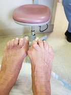 Are You Ready for Bunion Surgery?
