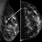 Role of 2D, 3D, and Contrast-enhanced Spectral Mammography in Diagnosis and Staging of Invasive Ductal Carcinoma
