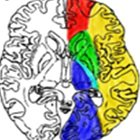 Decoding the Diffusion: Overview of Restricted Diffusion on Brain MRI
