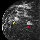 Fibroadenoma: From Imaging Evaluation to Treatment