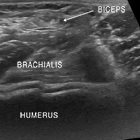 Evaluation of Common Pathology of the Elbow Utilizing Dynamic Ultrasound and MRI