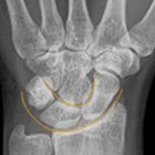 Carpal Instability: Clarification of the Most Common Etiologies and Imaging Findings