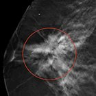 Imaging Evaluation of Nipple Discharge: Review of Literature and Management Considerations